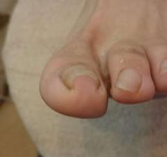 左親指巻き爪矯正前