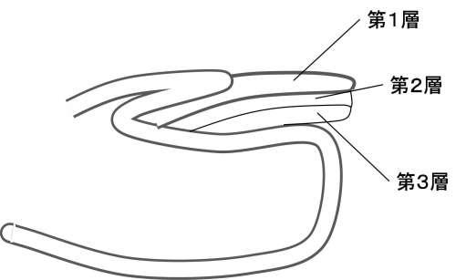 爪の王増の断面図