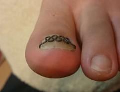 陥入爪ぎみの巻き爪施術後右親指