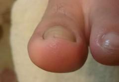 陥入爪美味の巻き爪左親指