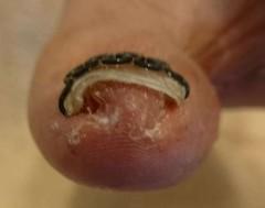 親指の巻き爪矯正後正面