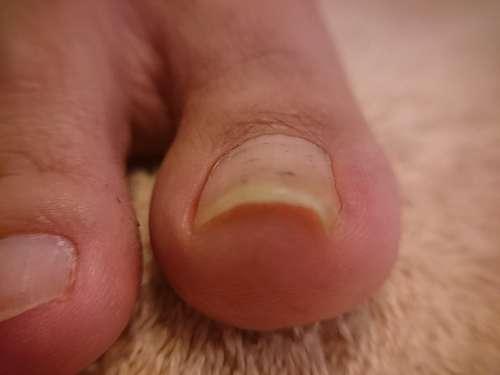 軽度の巻き爪右足施術前