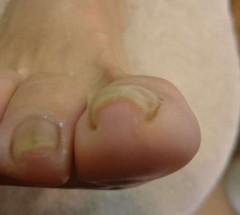 右親指巻き爪の矯正前の写真