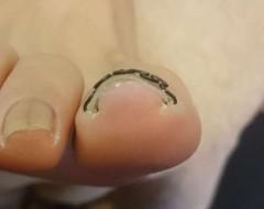 右親指巻き爪矯正後