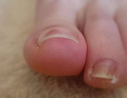 軽度の巻き爪施術前右親指