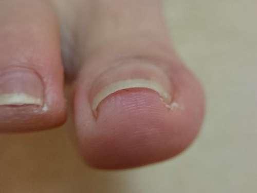 軽度の巻き爪右足