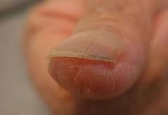 手の親指の巻き爪