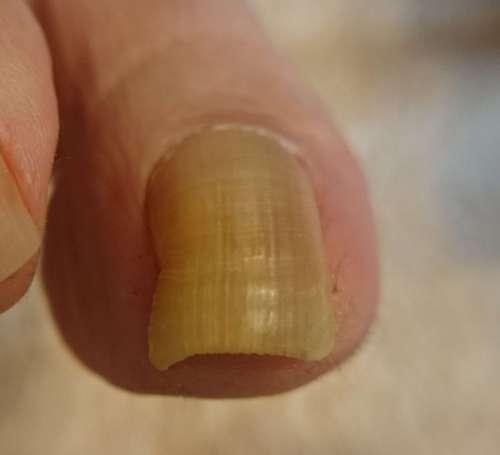 角度が変わる巻き爪