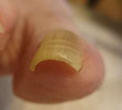 巻き爪矯正前右足