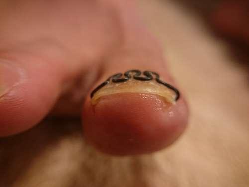 中度の巻き爪右施術後