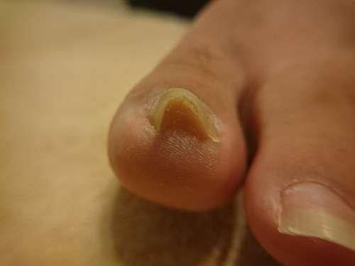重度の巻き爪左足施術前