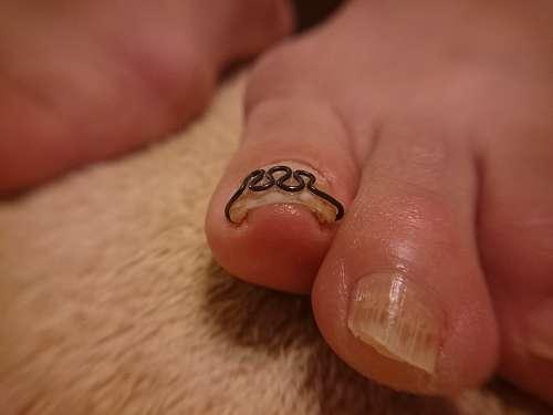 軽度の巻き爪左足施術後