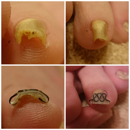 薬指の巻き爪ビフォーアフター
