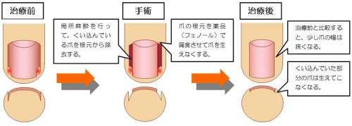 フェノール法の解説