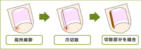 鬼塚法説明図
