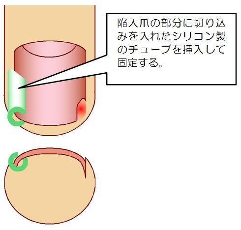 ガター法説明図