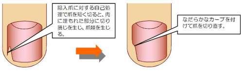 とげの切除説明図