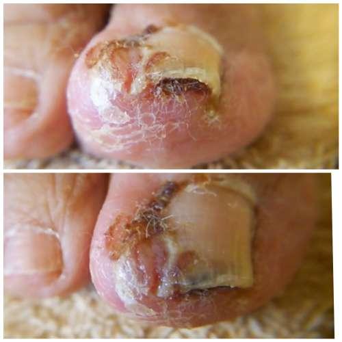 ひどい炎芽症のある爪